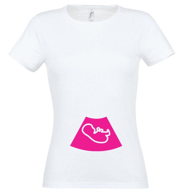 Ultrahang mintás női póló fehér színben