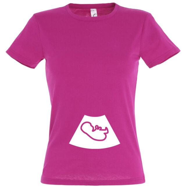 Ultrahang mintás női póló fuchsia színben